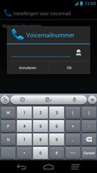 KPN Smart 300 - Voicemail - Handmatig instellen - Stap 10